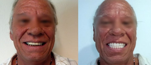 Before and after of a patient with All On 4 dental implants treatment.-