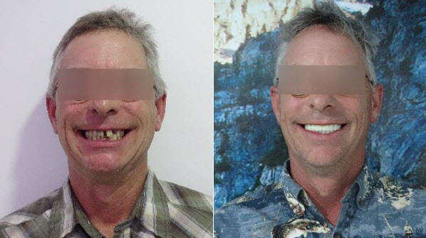 All On 4 dental implants patient.