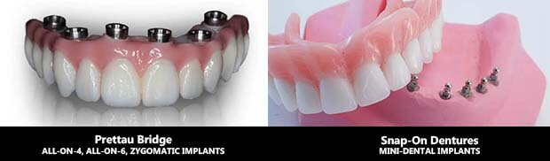 Zirconia Prettau Superstructure Vs Snap On Dentures