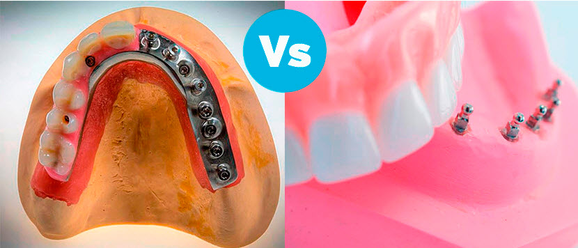 All on 4 or Snap On Dentures?, which one you need?