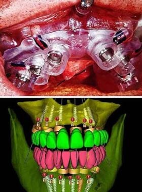 Surgical guides for the All-On-4 dental implants placement.