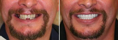 Permanent dentures before and after.