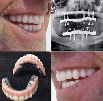 All On 4 Implants Xray adn fixed hybrid denture