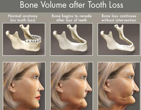 Wil full dental implants you can avoid future bone shrinking problems. take care of your oral health today with All on 4 implants.