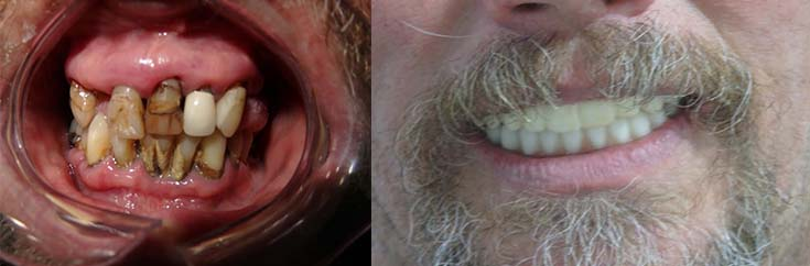 Denture Implants before and after