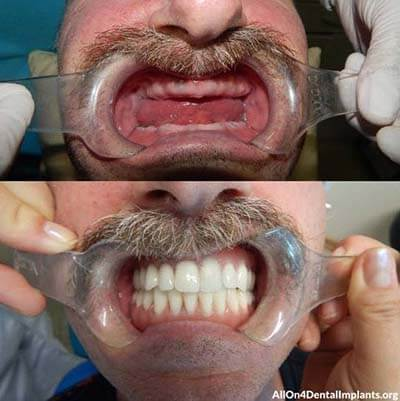 Snap In Dentures Before and After