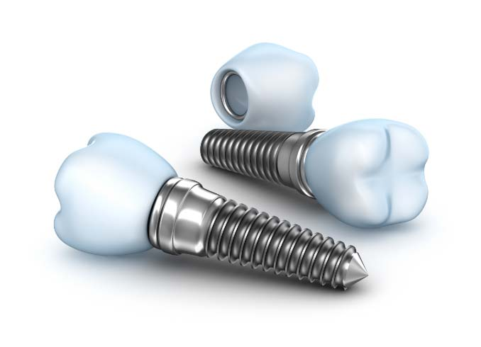 What Is a Tooth Implant?