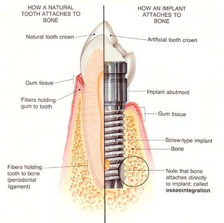 Dental osseointegration process