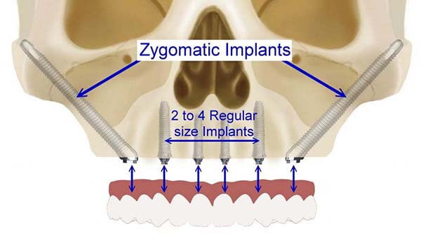 Zygomatic Dental Implants for bone loss