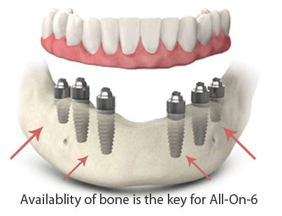 All On 6 Dental Implants picture