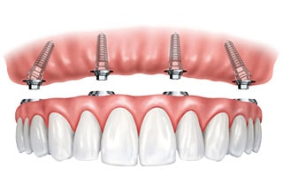 Dental Implant Dentures System