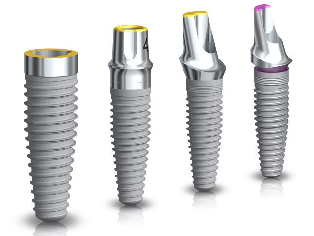Tooth implant samples by Nobel Biocar.