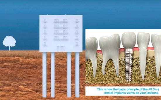 The tooth implant structure works as any building foundation.