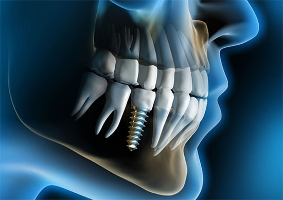 Tooth Implants Placement