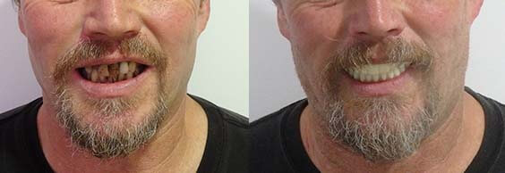 Before and after full mouth dental implants