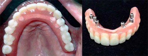 Same day dental implants set