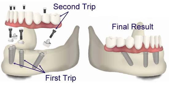 Illustration showing the lower mandible setting of implants for the All On 4 dental implants.