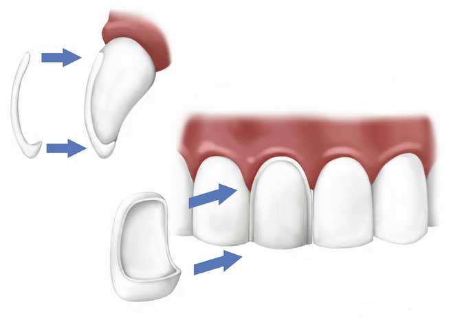 Dental veneer illustration shows how the thin porcelain or zirconia shell adheres to the surface of the tooth.