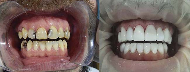 Smile makeover with dental veneers before and after