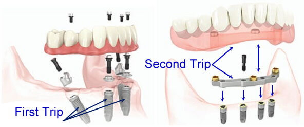 Illustration of permanent dentures with implants.