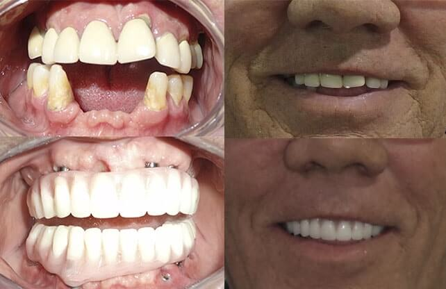 Permanent dentures before and after pictures