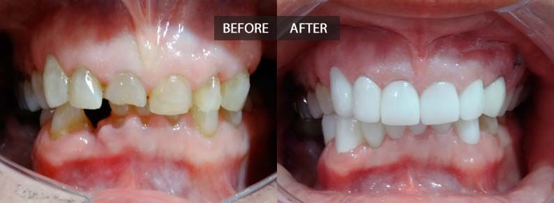 Porcelain crowns in upper teeth