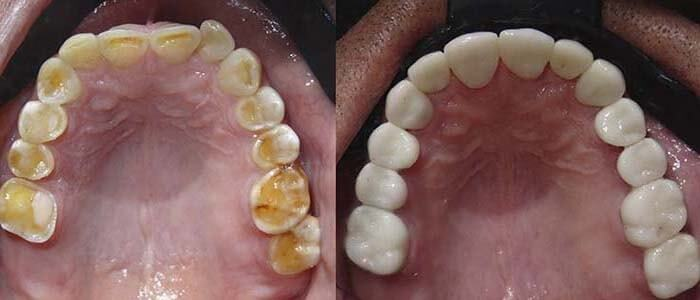 Upper teeth with porcelain Emax crowns