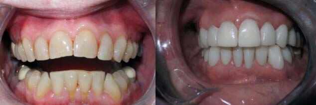 before and after dental work in Mexico