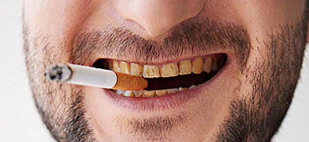 What Effect Does Smoking Has On Dental Implants