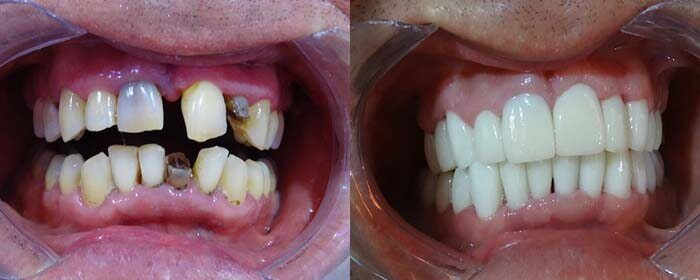 Cosmetic Dental Surgery in Mexico
