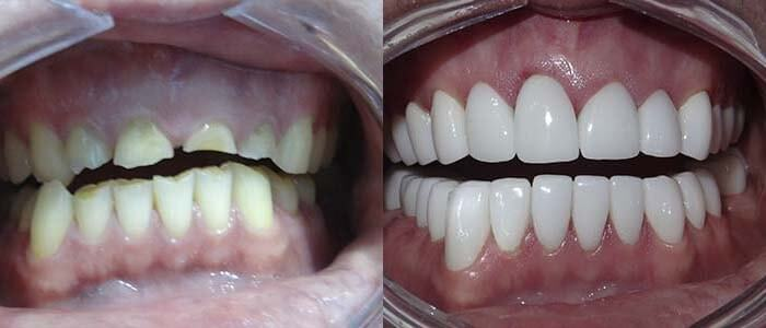 Before and after porcelain crowns