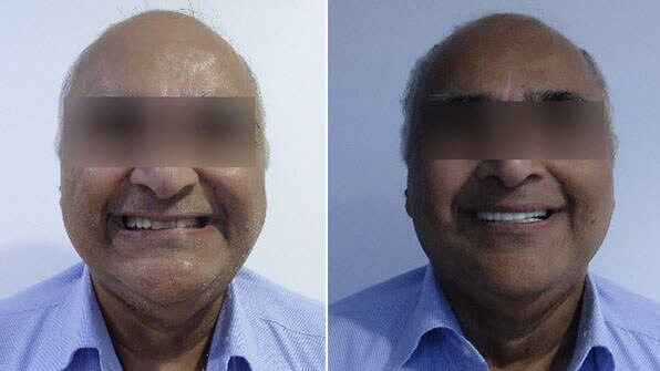before and after cosmetic dentistry in Cancun
