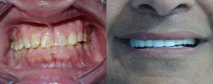Low cost dental work before and after