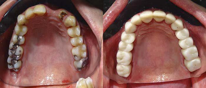Upper crowned teeth
