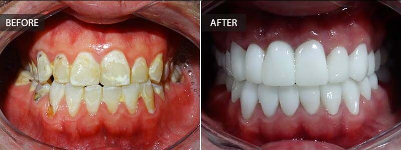 Before and after a full mouth makeover.