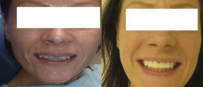 before-and-after-cosmetic-dentistry-cancun-mexico
