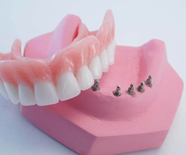 A set of clip dentures over the head of mini-implants.