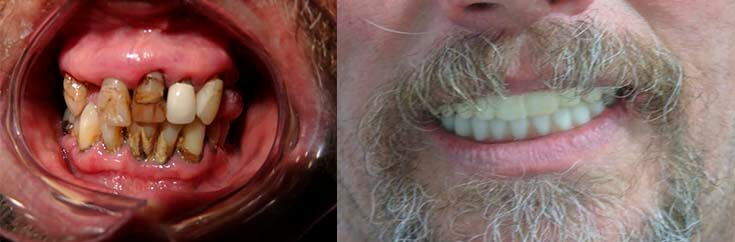 A before and after of a hybrid denture with implants.