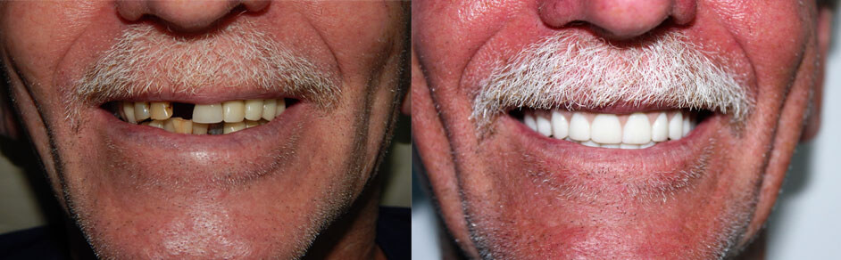 Implant dentures before and after