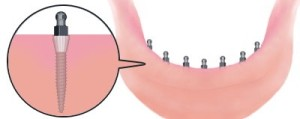 The head of the mini-implant is shaped like an o-ball and it will lock down the dentures when they snap.