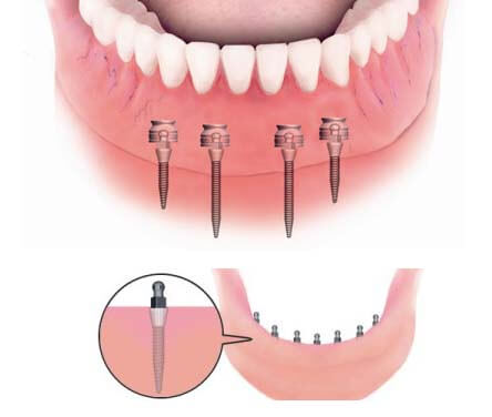 System of how the Clip On Dentures work.
