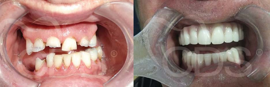 Before and after of All On Four dental implants in Cancun.
