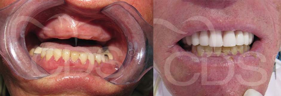 All On Four dentures before and after