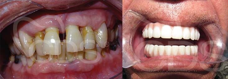 Fixed Hybrid Bridge of Zirconium Before and After