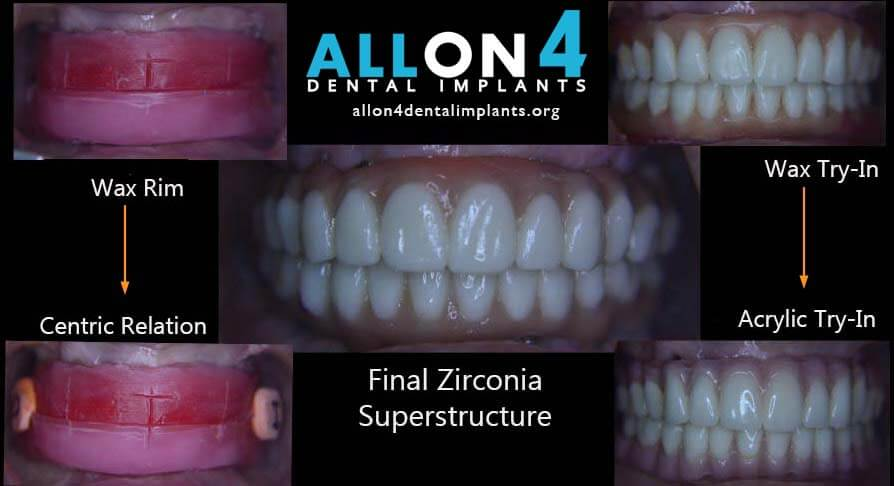 Full-arch All On 4 Zirconia Superstructure for the All-On-4 Step by Step