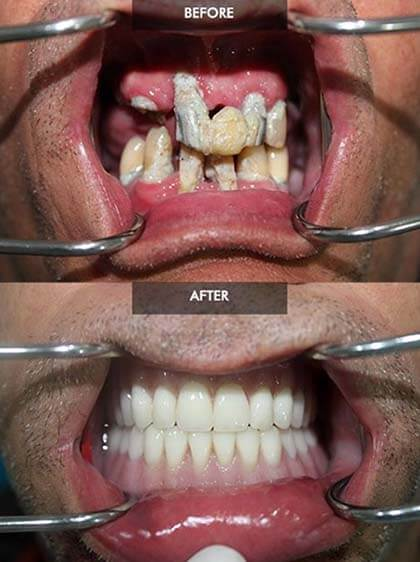 All On 4 Before And After Dental Implants Picture Gallery