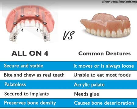All On Four Implants Vs Common Dentures
