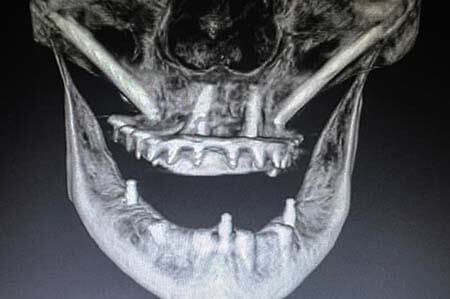 CAD CAM image of zygomatic dental implants