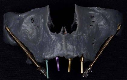 Zygomatic Dental Implants 3D Scan Pre-planning
