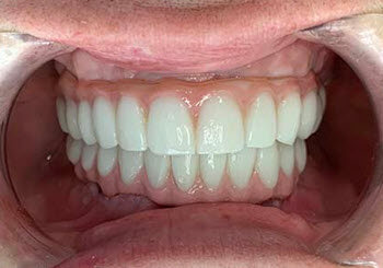 Upper and bottom set of All On Four dental implants done in Cancun, Mexico.